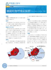 睡眠時無呼吸症候群については、一般社団法人日本呼吸器学会のサイト(画像・リンク)にも詳しい