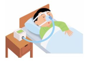 CPAP(シーパップ)とは、鼻に装着したマスクから空気を送りこむことによって、ある一定の圧力を気道にかける方法。いまや睡眠時無呼吸症候群(SAS)のもっとも重要な治療法となっているという(フクダ電子株式会社運営「SNSnet」より)
